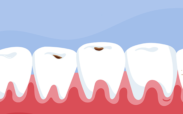 矯正治療中、むし歯になったらどうするの?